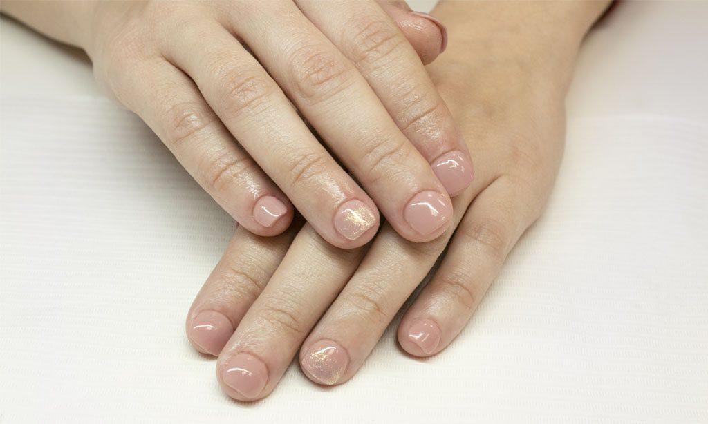 trattamento mordere le unghie